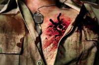 gunsshot wound